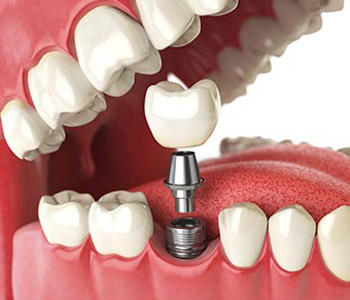 Dr. Theodore M. Siegel, Big Smile Dental Providing missing teeth with dental implants in Chicago area